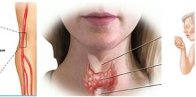 Thyroid Abnormality