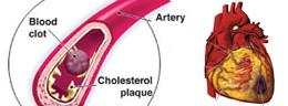 Cardio-Vascular Risk