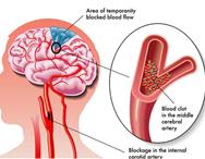 Stroke / Carotid Artery Disease