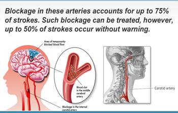 Stroke / Carotid Artery Screening