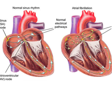 Atrial Fibrillation Heart Rhythm