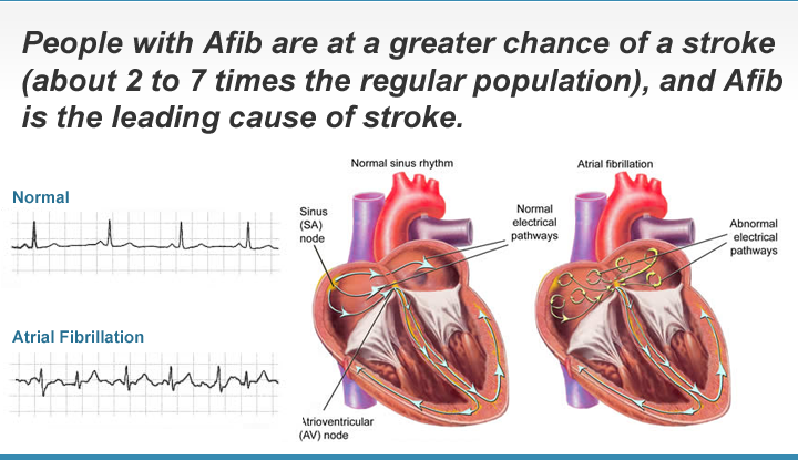 Atrial Fibrillation Heart Rhythm Screening