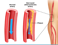 Peripheral Arterial Disease Screening