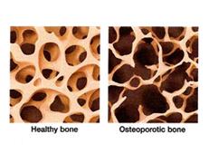 Osteoporosis Screening