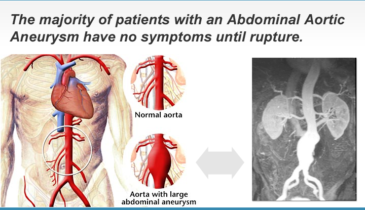 abdominal aortic aneurysm ultrasound screening programme The nhs central england abdominal aortic aneurysm (aaa) screening programme is aimed at men aged 65 and over within birmingham, solihull, sandwell, south east staffordshire and east staffordshire.